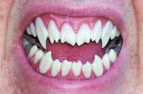 Happy Halloween Scary Teeth And Candy Eating Tips