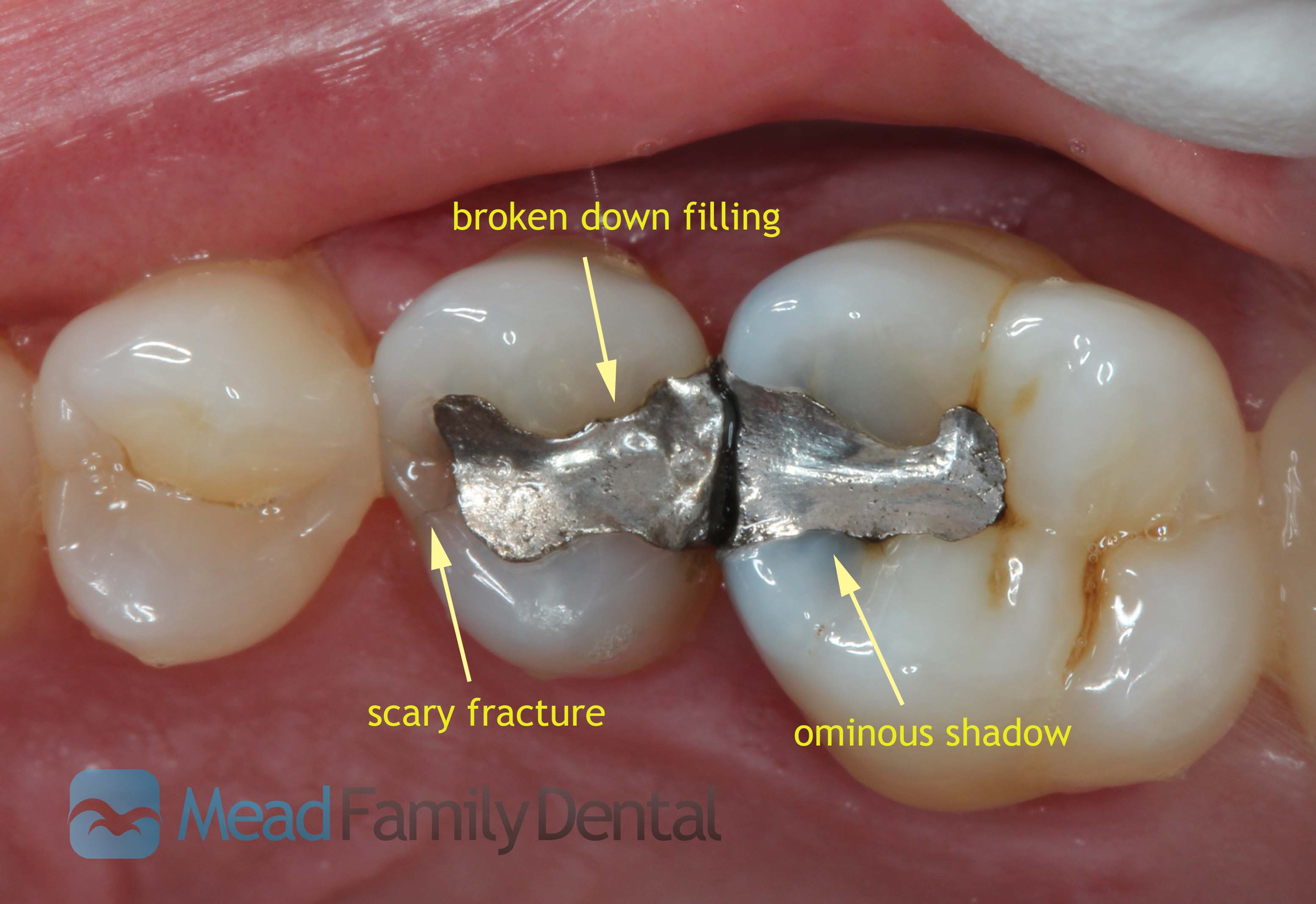 Objections mead family dental i solutioingenieria Images
