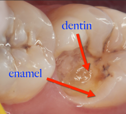 enamel and dentin