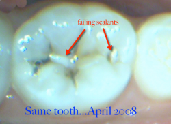 same tooth 2008