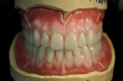 better dentures