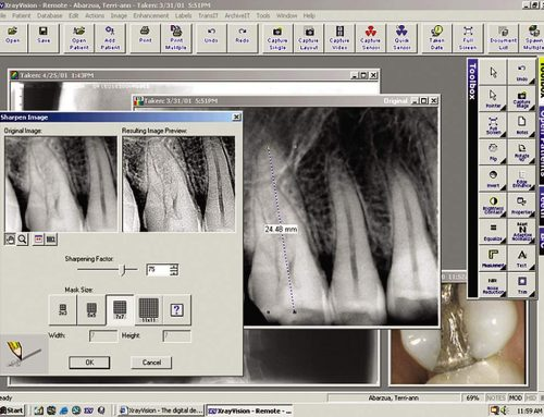 The digital consultation: a benefit of a high tech dentist