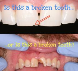 broken tooth better