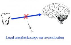 local anesthesia diagram